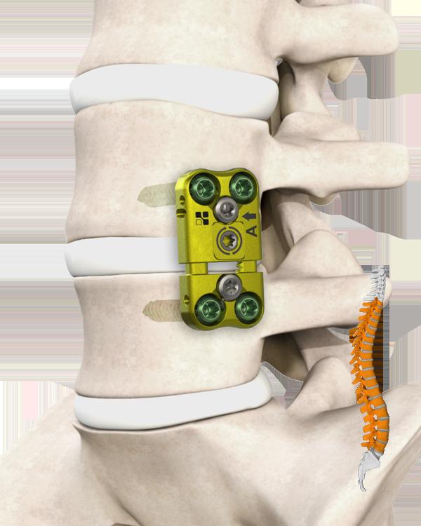 Belvedere Spine