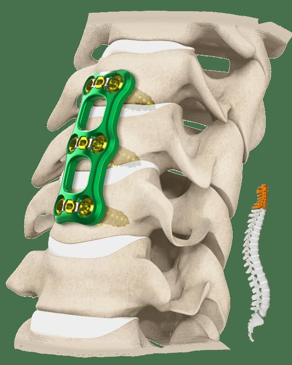 Transom Spine